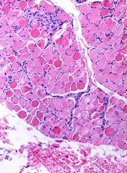 Necrotic muscle fiber. The key pathologic change of the Duchenne muscular dystrophy is the myonecrosis. At an early phase, necrotic fibers appear swollen, homogeneous and deeply eosinophilic. This disease is caused by mutations of dystrophin, the largest known human gene, located on chromosome Xq21.